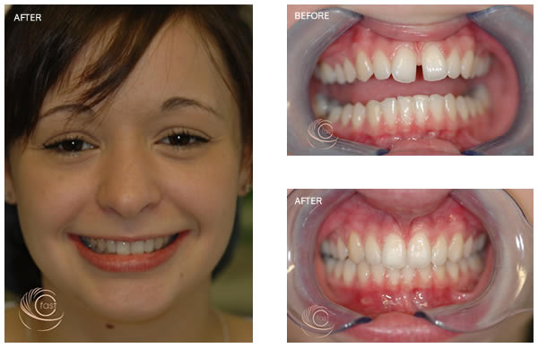 Before and after Cfast treatment
