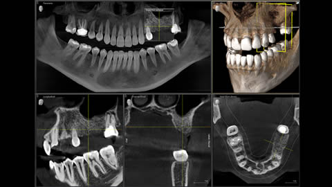 CT Scan for dental implant placement